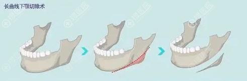 长曲线下颌角截骨示意图