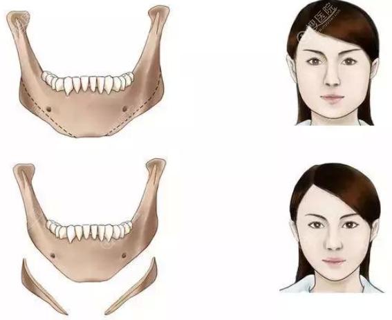 长曲线下颌角截骨多少钱?