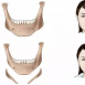 长曲线下颌角截骨价格贵吗?和普通下颌角的区别你需要知道
