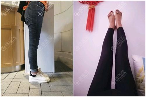 北京达美如艺大腿吸脂案例