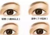 双眼皮做了7mm恢复后感觉好宽,那自然的双眼皮宽度是多少毫米