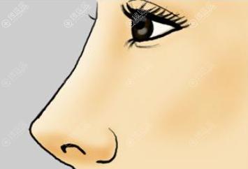 双侧耳软骨做出来的鼻子是不是比单侧高