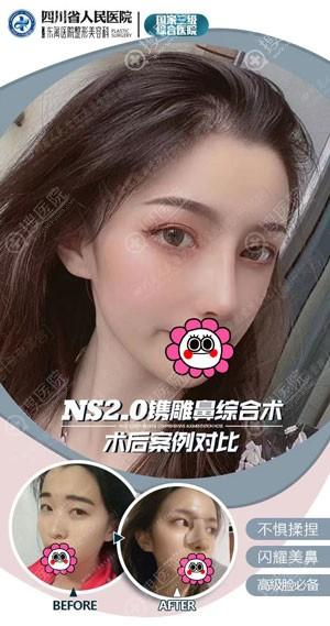刘祎耳软骨隆鼻案例