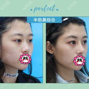 重庆华美张国强半肋鼻综合案例