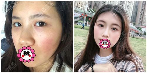 重庆时光隆鼻案例