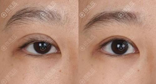 双眼皮二次修复对比效果