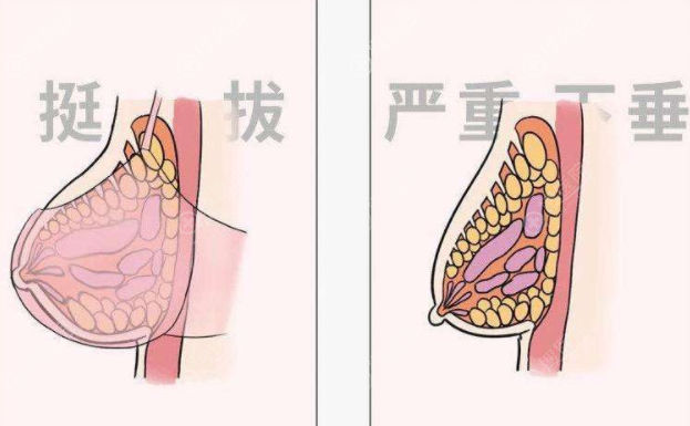 人工韧带乳房提升术效果怎么样?