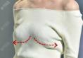 不得不说人工韧带乳房提升术矫正胸下垂效果不错,手术费用多少?