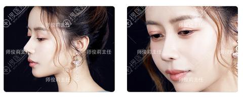 师俊莉做的鼻子真的好吗
