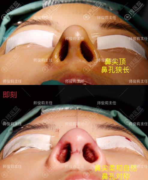 师俊莉鼻子修复做的怎么样