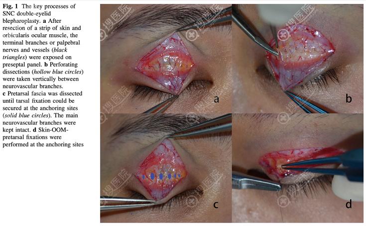 保留血管双眼皮手术原理