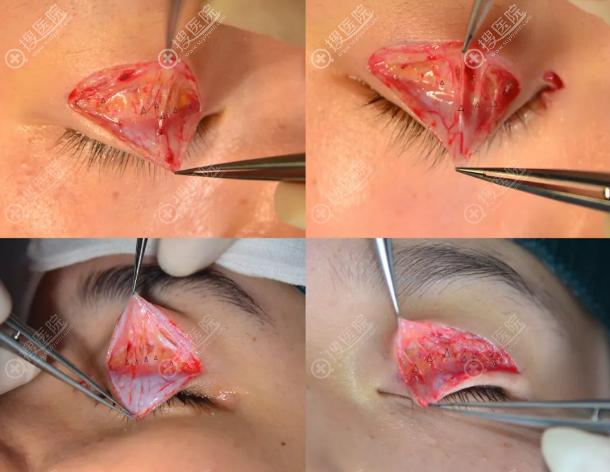 保留血管双眼皮手术过程图
