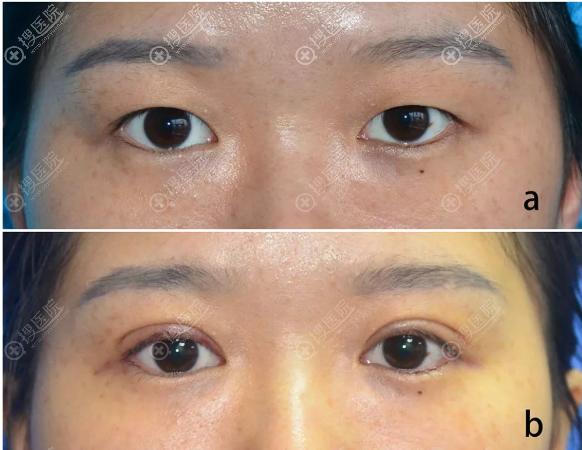 保留血管双眼皮术后七天效果