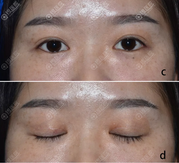 保留血管双眼皮术后六个月闭眼隐痕