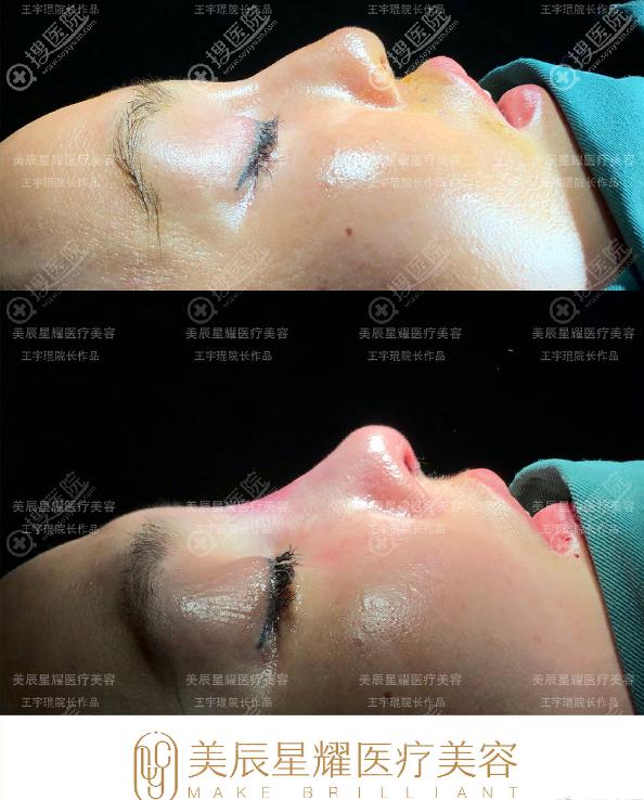 王宇琨做的鼻修复效果好看又自然
